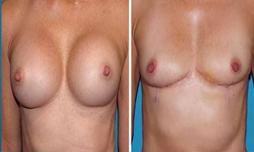 Breast-Explant-130