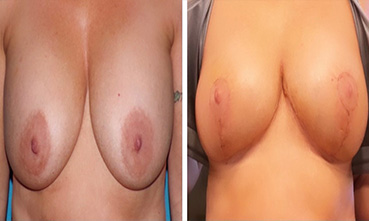 Breast Explant 131